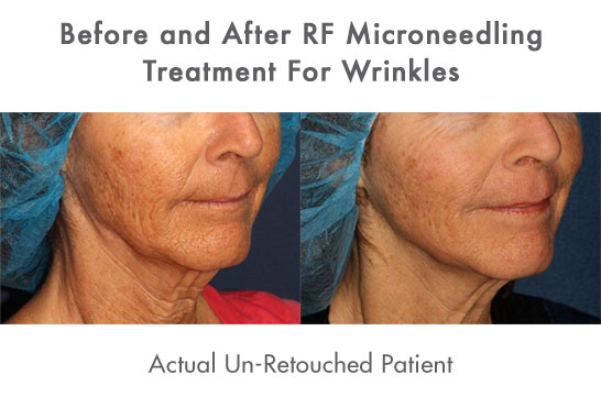 Actual unretouched patient before and after RF microneedling to treat wrinkles by Dr. Groff. Disclaimer: Results may vary from patient to patient. Results are not guaranteed.