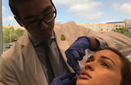 Dr. Wu injecting lip fillers into a patient in San Diego, CA
