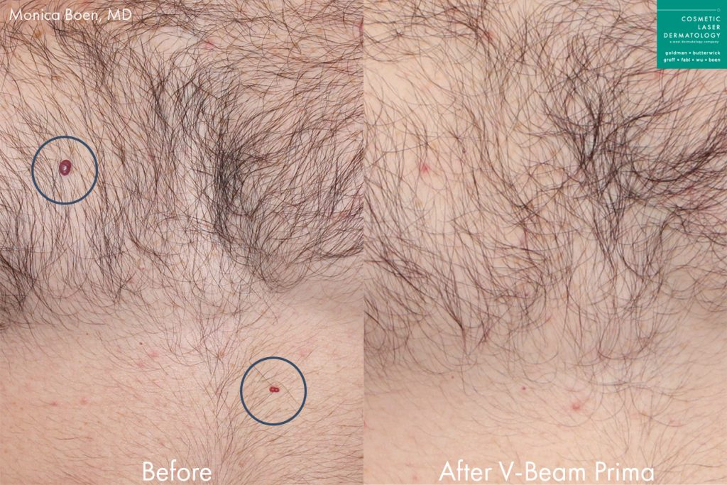 Vbeam to remove angiomas from the chest by Dr. Boen. Disclaimer: Results may vary from patient to patient. Results are not guaranteed.