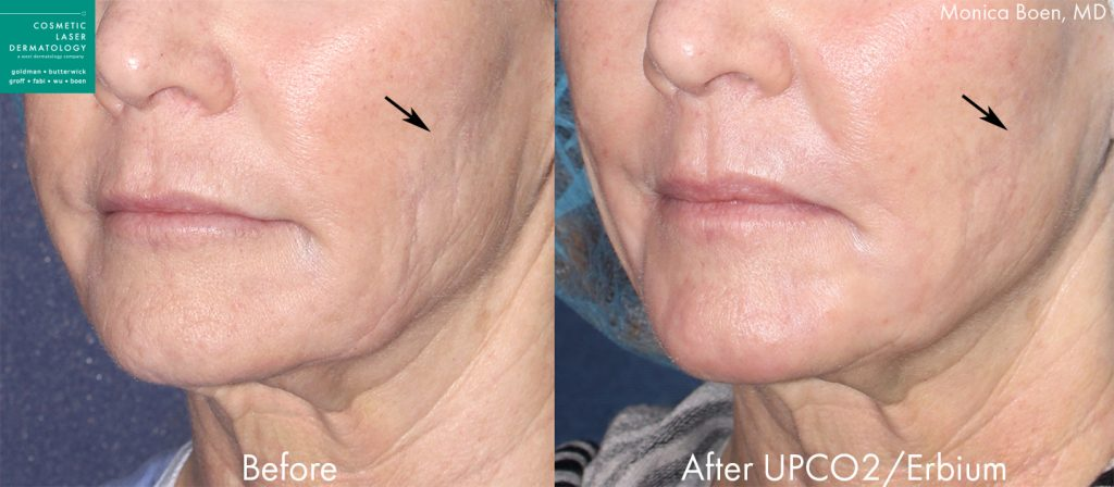 UPCO2 and Erbium Laser to Treat Fine Lines by Dr. Boen.  Disclaimer: Results may vary from patient to patient. Results are not guaranteed.