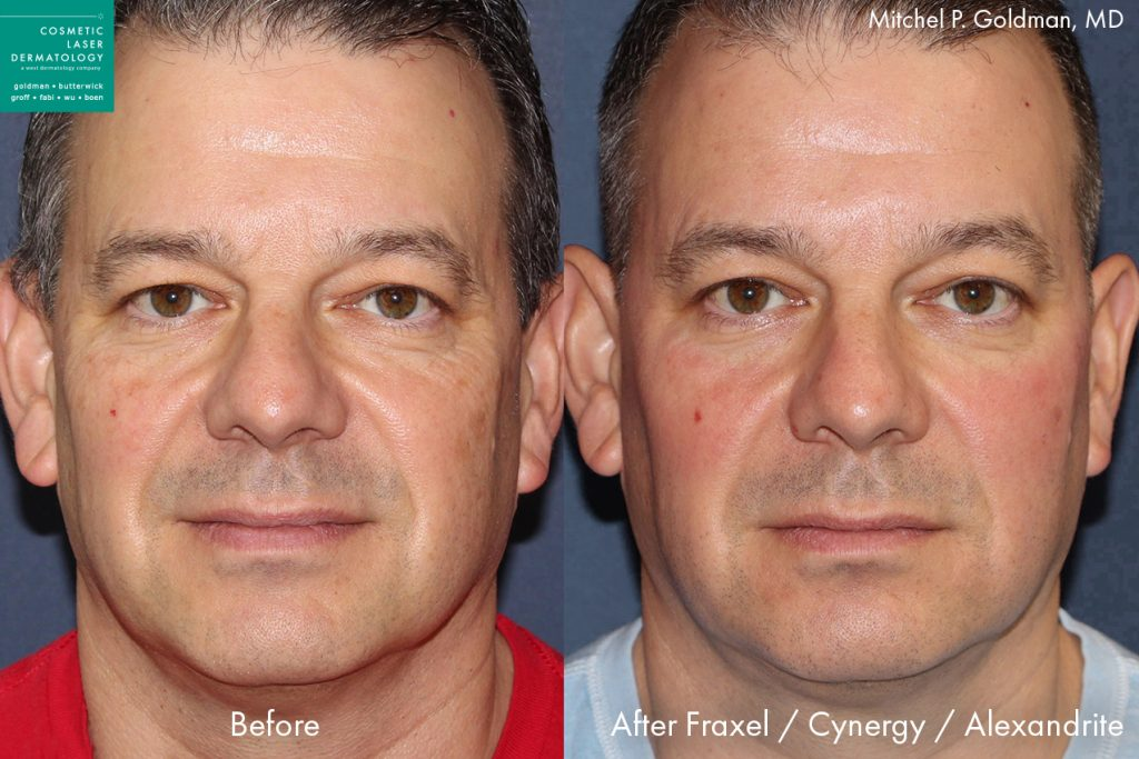 Fraxel, Cynergy and Alexandrite lasers to rejuvenate the skin and reduce wrinkles by Dr. Goldman. Disclaimer: Results may vary from patient to patient. Results are not guaranteed.