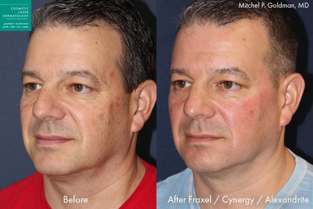 Fraxel, Cynergy and Alexandrite laser to rejuvenate the skin and reduce fine lines and wrinkles by Dr. Goldman. Disclaimer: Results may vary from patient to patient. Results are not guaranteed.