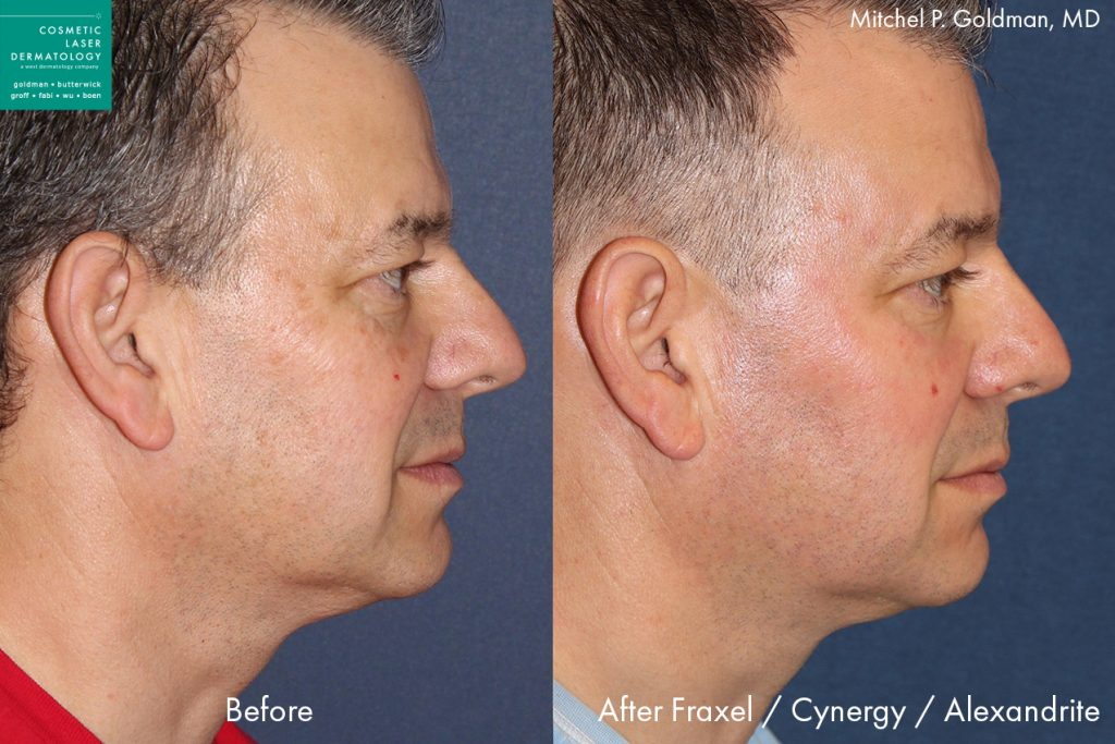 Fraxel, Cynergy and Alexandrite laser treatment to rejuvenate skin and reduce wrinkles by Dr. Goldman. Disclaimer: Results may vary from patient to patient. Results are not guaranteed.