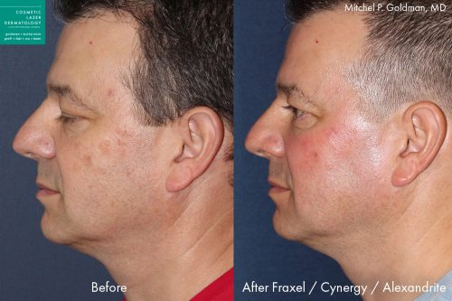 Before and after side image of Fraxel, Cynergy and Alexandrite laser treatment on a male's face performed by Dr. Goldman at our San Diego med spa
