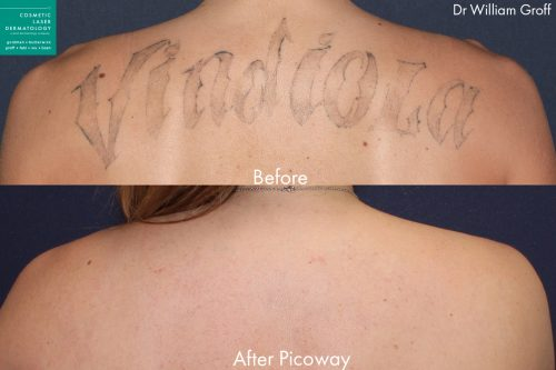 Before and after back image of PicoWay laser tattoo removal on a female's back performed by Dr. Groff at our San Diego medical clinic