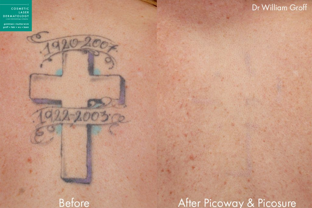 PicoSure and PicoWay lasers used to remove a tattoo by Dr. Groff. Disclaimer: Results may vary from patient to patient. Results are not guaranteed.