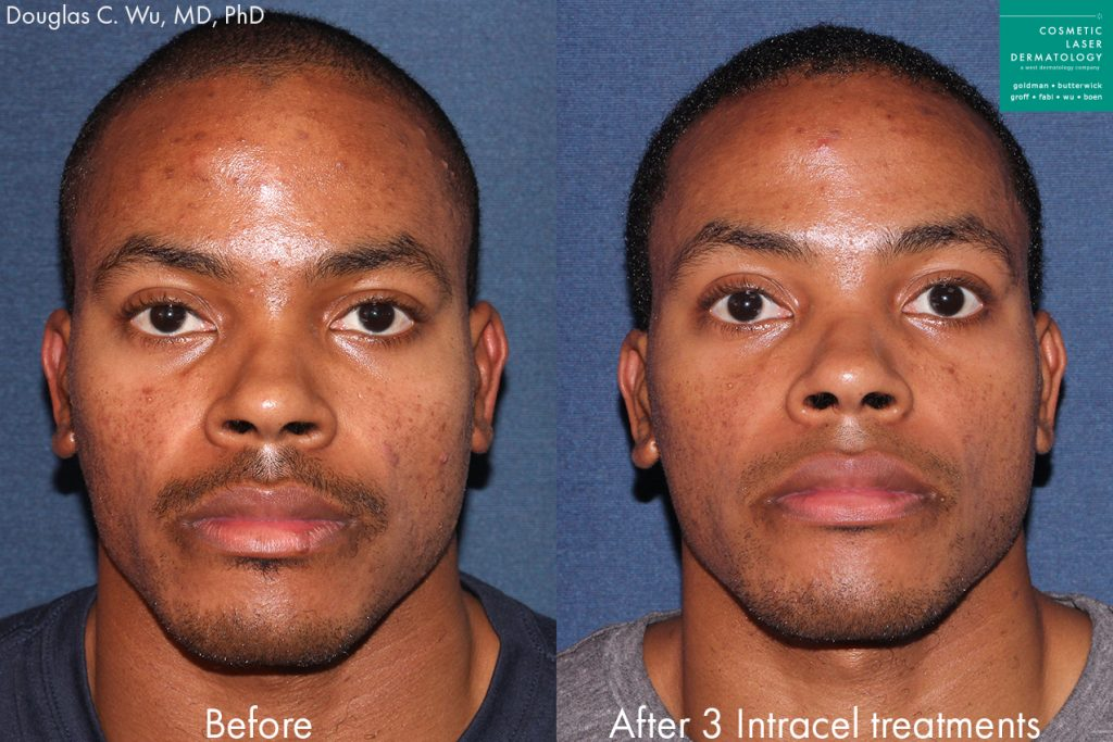 Intracel RF microneedling for treatment of hyperpigmentation by Dr. Wu. Disclaimer: Results may vary from patient to patient. Results are not guaranteed.