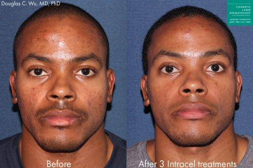 Before and after front image of Intracel treatment on a male's cheeks performed by Dr. Wu at our San Diego medical spa