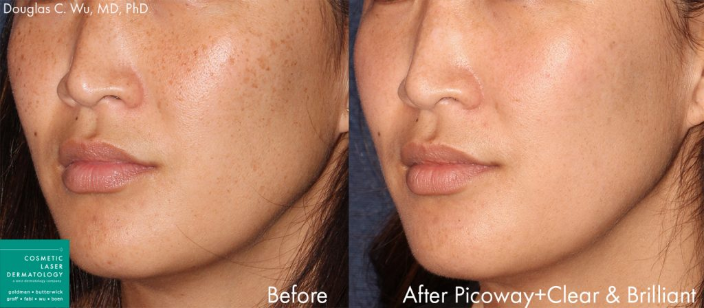 PicoWay and Clear & Brilliant lasers for treatment of hyperpigmentation by Dr. Wu. Disclaimer: Results may vary from patient to patient. Results are not guaranteed.