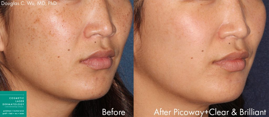 PicoWay with Clear & Brilliant for treatment of hyperpigmentation by Dr. Wu. Disclaimer: Results may vary from patient to patient. Results are not guaranteed.