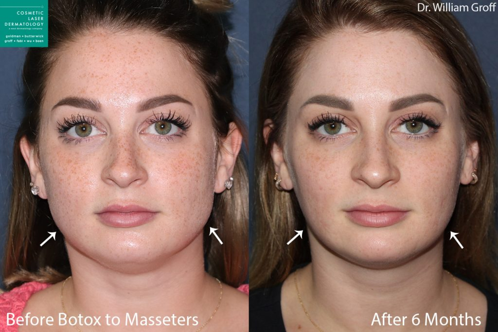 Botox injections to reduce the masseter muscles of a female patient by Dr. Groff. Disclaimer: Results can vary from patient to patient.