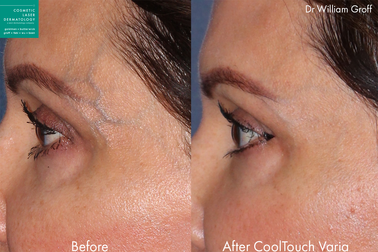 CoolTouch Varia to remove temple veins on a female patient by Dr. Groff. Disclaimer: Results can vary from patient to patient.