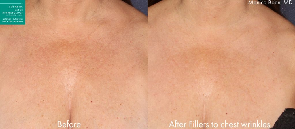 Injectable fillers to Treat Chest Wrinkles by Dr. Boen. Disclaimer: Results may vary from patient to patient. Results are not guaranteed.