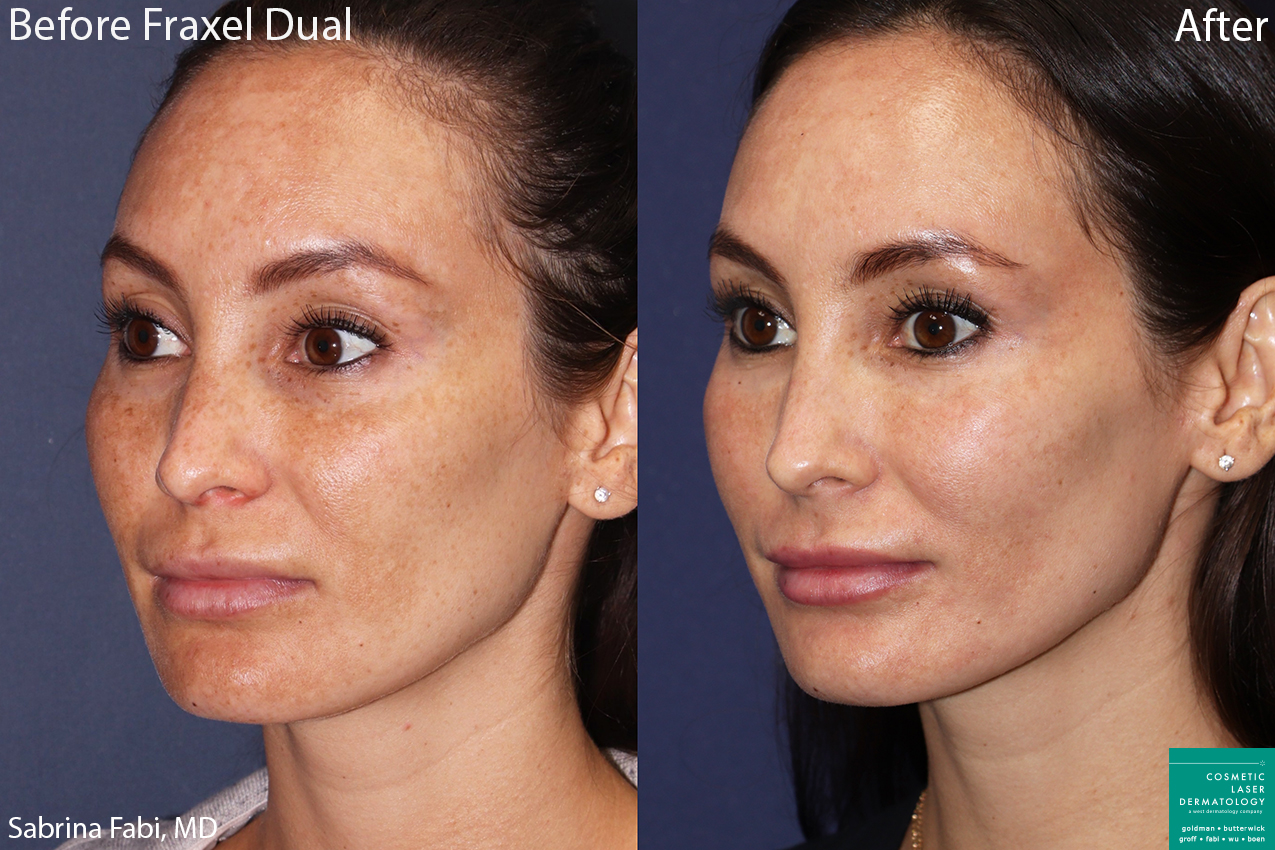 Fraxel Dual to address sun damage on a female patient by Dr. Fabi. Disclaimer: Results can vary from patient to patient.