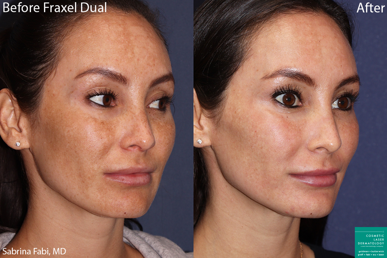 Fraxel Dual to treat sun damage on a female patient by Dr. Fabi. Disclaimer: Results can vary from patient to patient.
