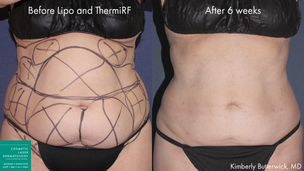 Liposculpture and ThermiRF to treat abdominal fat on a female patient by Dr. Butterwick. Disclaimer: Results may vary from patient to patient.
