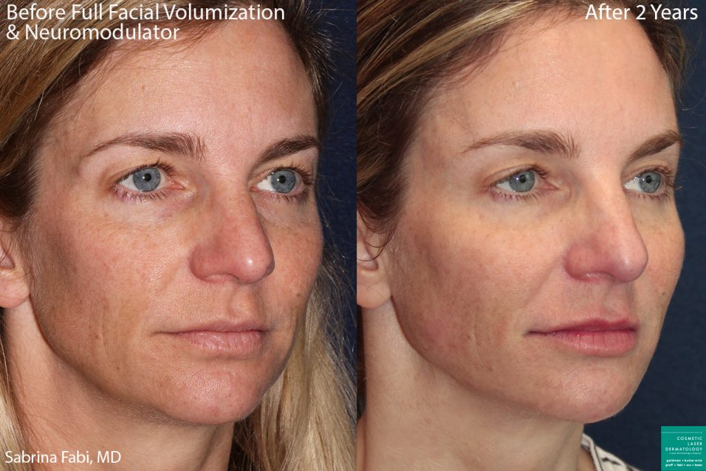 Fillers and neuromodulators to add volume to the face of a female patient by Dr. Fabi. Disclaimer: Results may vary from patient to patient.
