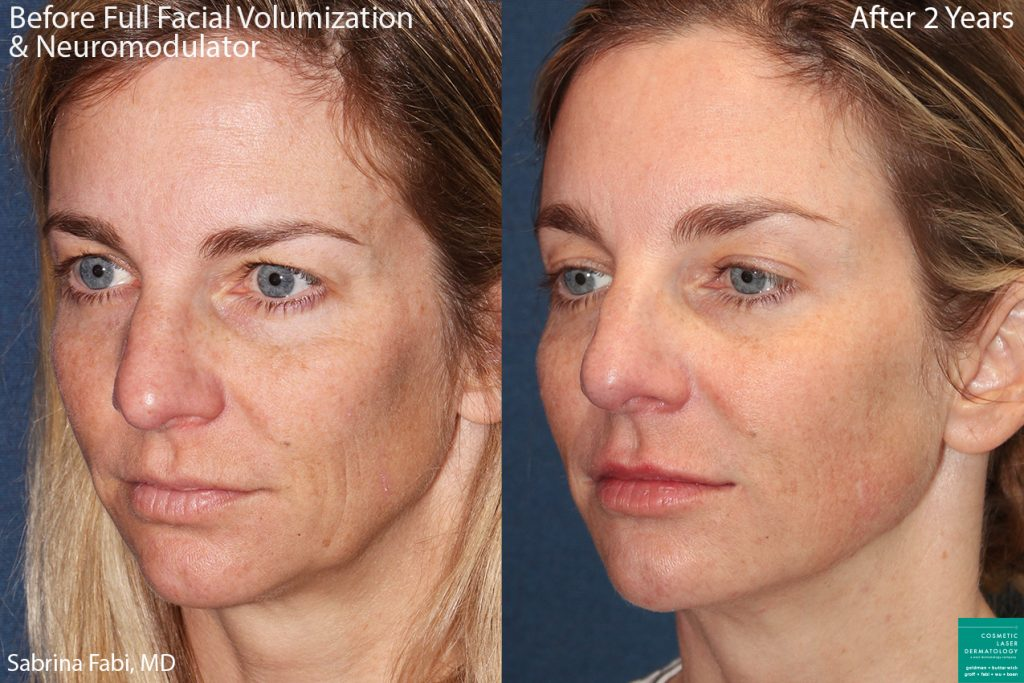 Fillers and neuromodulators to volumize the face of a female patient by Dr. Fabi. Disclaimer: Results can vary from patient to patient.