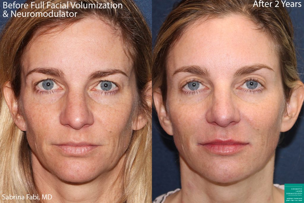 Fillers and neuromodulators for facial volumization on a female patient by Dr. Fabi. Disclaimer: Patient results can vary.