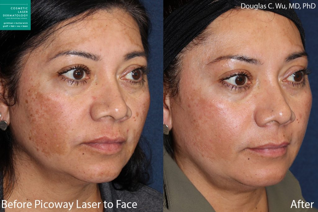 PicoWay Laser to Treat Sun Damage and Brown Spots by Dr. Wu. Disclaimer: Results may vary from patient to patient. Results are not guaranteed.