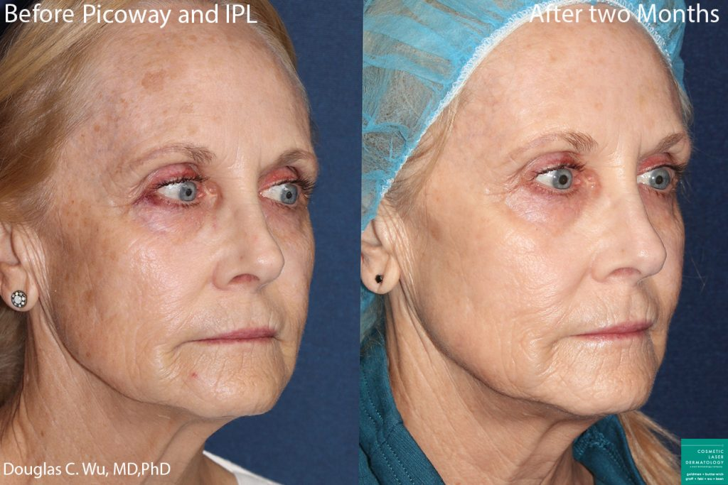 PicoWay Laser and IPL to Rejuvenate the Skin by Dr. Wu. Disclaimer: Results may vary from patient to patient. Results are not guaranteed.