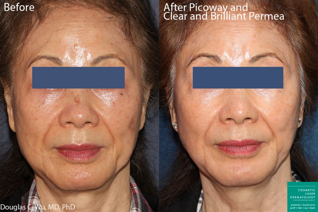 PicoWay and Clear+Brilliant laser treatment to address sun damage by Dr. Wu. Disclaimer: Results can vary from patient to patient.