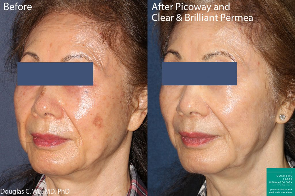 PicoWay and Clear & Brilliant Laser to Treat Sun Damage and Brown Spots by Dr. Wu. Disclaimer: Results may vary from patient to patient. Results are not guaranteed.