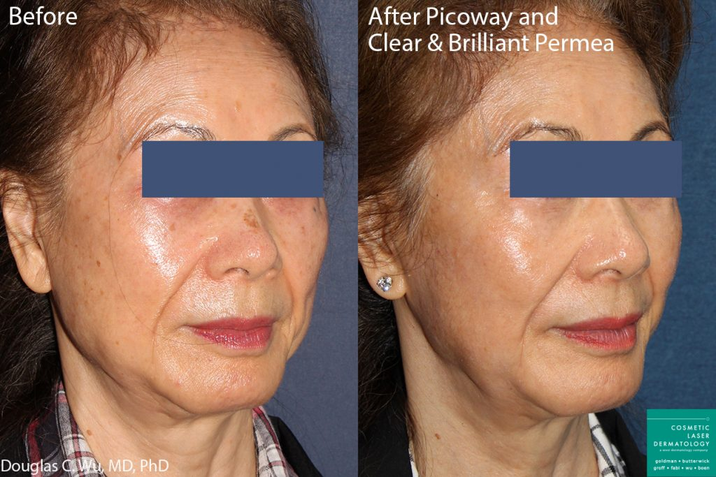 PicoWay and Clear+Brilliant Lasers to Treat Sun Damage and Brown Spots by Dr. Wu. Disclaimer: Results may vary from patient to patient. Results are not guaranteed.