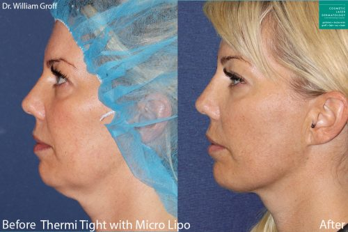 Before and after side image of liposculpture and ThermiTight treatment on a female's chin performed by Dr. Groff at our San Diego medical spa