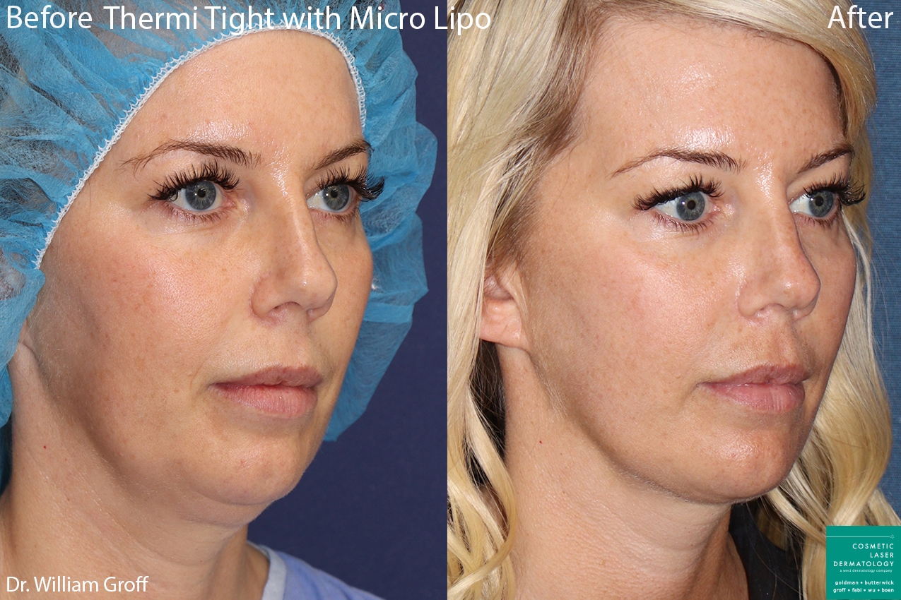 ThermiTight and micro liposuction to treat submental fat under the chin of a female patient by Dr. Groff. Disclaimer: Results can vary from patient to patient.