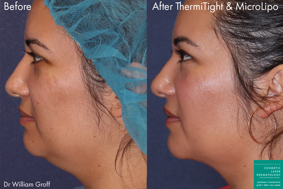 ThermiTight and micro lipo to eliminate submental fat on a female patient by Dr. Groff. Disclaimer: Results can vary from patient to patient.