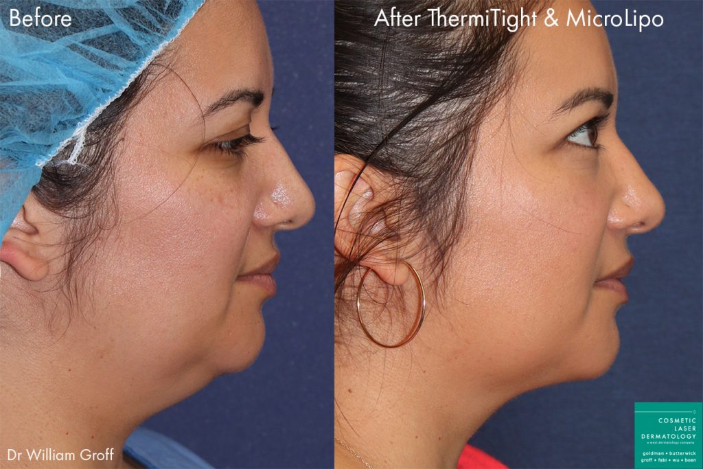 ThermiTight and micro lipo to eliminate submental fat in a female patient by Dr. Groff. Disclaimer: Results may vary from patient to patient.