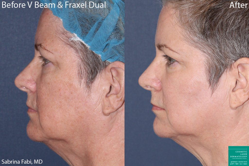 Vbeam and Fraxel Dual to treat sun damage and rejuvenate skin by Dr. Fabi. Disclaimer: Results can vary from patient to patient.