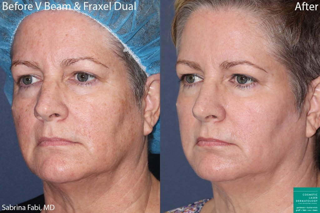 Vbeam and Fraxel Dual to treat sun damage and rejuvenate the skin by Dr. Fabi. Disclaimer: Results can change from patient to patient.