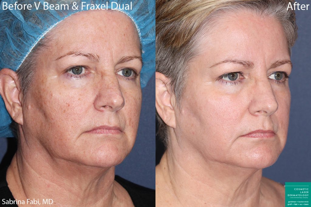 Vbeam and Fraxel Dual to treat sun damage and rejuvenate the skin of a female patient by Dr. Fabi. Disclaimer: Results can vary from patient to patient.