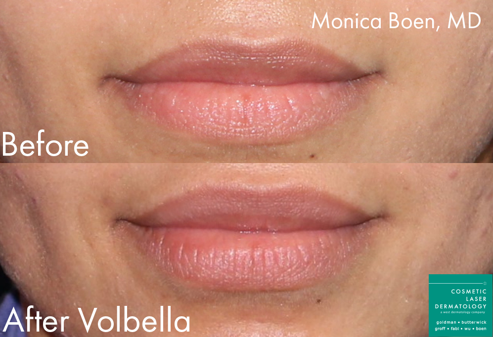 Volbella Injections to Augment the Lips by Dr. Boen. Disclaimer: Results may vary from patient to patient. Results are not guaranteed.
