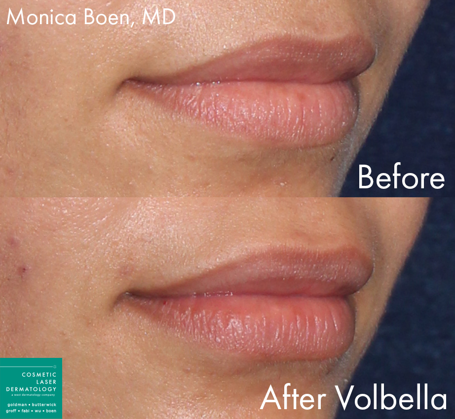 Volbella injections to augment the lips of a female patient by Dr. Boen. Disclaimer: Results may vary from patient to patient. Results are not guaranteed.