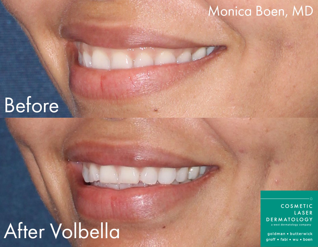 Volbella Injections to Augment Lips by Dr. Boen. Disclaimer: Results may vary from patient to patient. Results are not guaranteed.