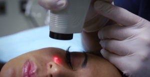 laser scar revision surgery in san diego, ca