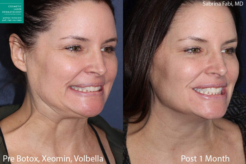 Botox and Xeomin for crow's feet, Volbella for lip fullness by Dr. Fabi. Disclaimer: Results may vary from patient to patient. Results are not guaranteed.