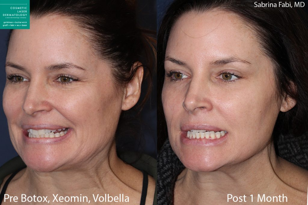 Botox and Xeomin for crow's feet and neck rejuvenation, Volbella for lip augmentation by Dr. Fabi. Disclaimer: Results may vary from patient to patient. Results are not guaranteed.