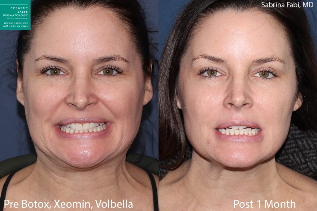 Botox and Xeomin for wrinkles and neck rejuvenation, Volbella for lip enhancement by Dr. Fabi. Disclaimer: Results may vary from patient to patient. Results are not guaranteed.