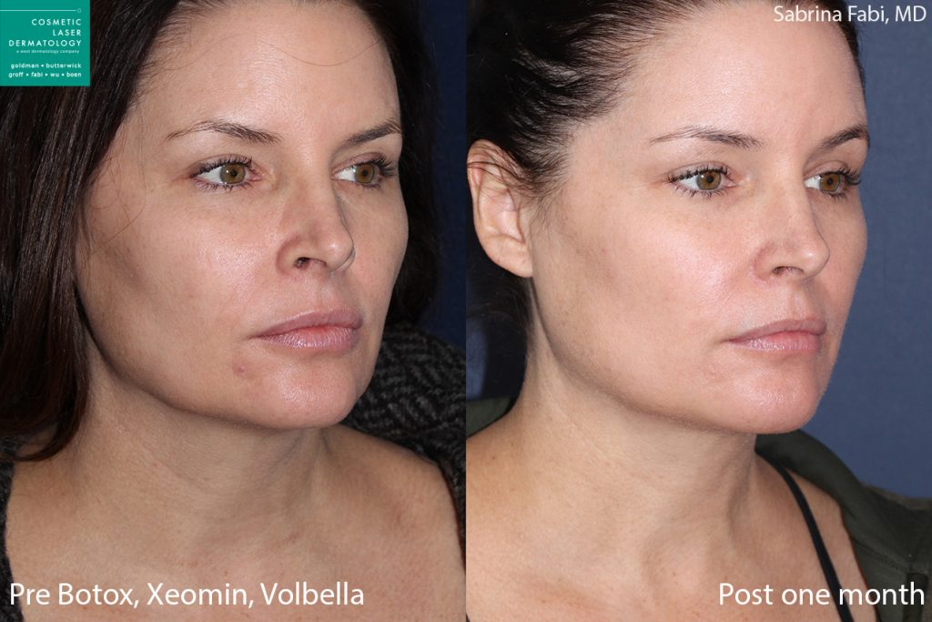 Botox, Xeomin, Volbella for neck and face rejuvenation by Dr. Fabi. Disclaimer: Results may vary from patient to patient. Results are not guaranteed.