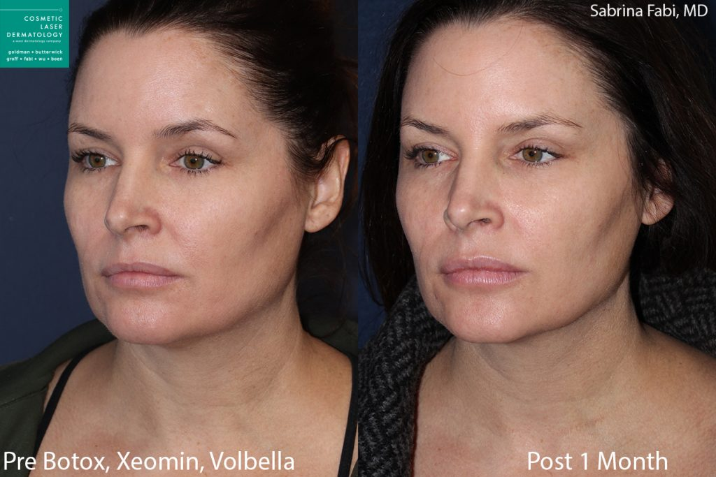 Botox, Xeomin and Volbella for rejuvenating the neck and face by Dr. Fabi. Disclaimer: Results may vary from patient to patient. Results are not guaranteed.