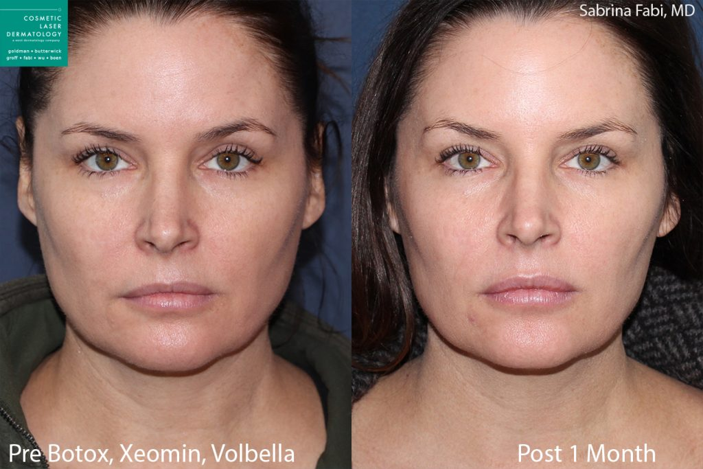 Botox, Xeomin and Volbella for rejuvenating the face and neck by Dr. Fabi. Disclaimer: Results may vary from patient to patient. Results are not guaranteed.