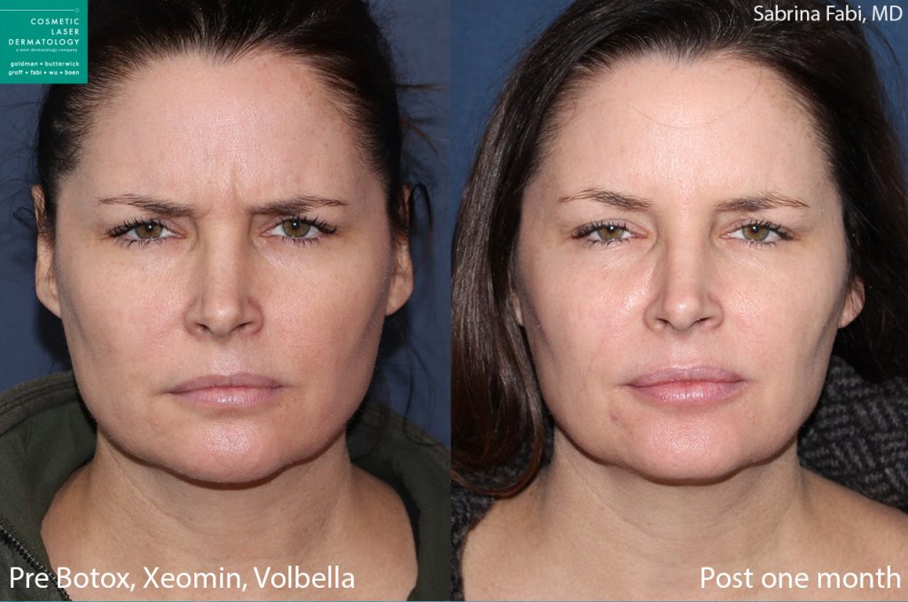 Botox and Xeomin to treat frown lines by Dr. Fabi. Disclaimer: Results may vary from patient to patient. Results are not guaranteed.