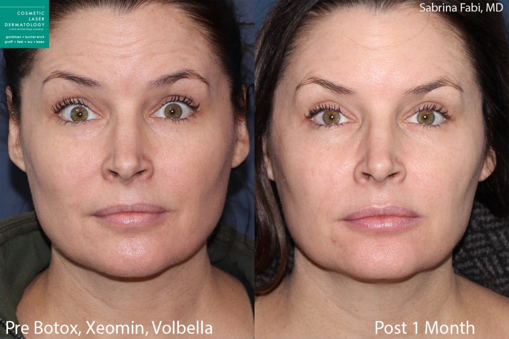 Botox and Xeomin for wrinkles, Volbella for lip augmentation by Dr. Fabi. Disclaimer: Results may vary from patient to patient. Results are not guaranteed.
