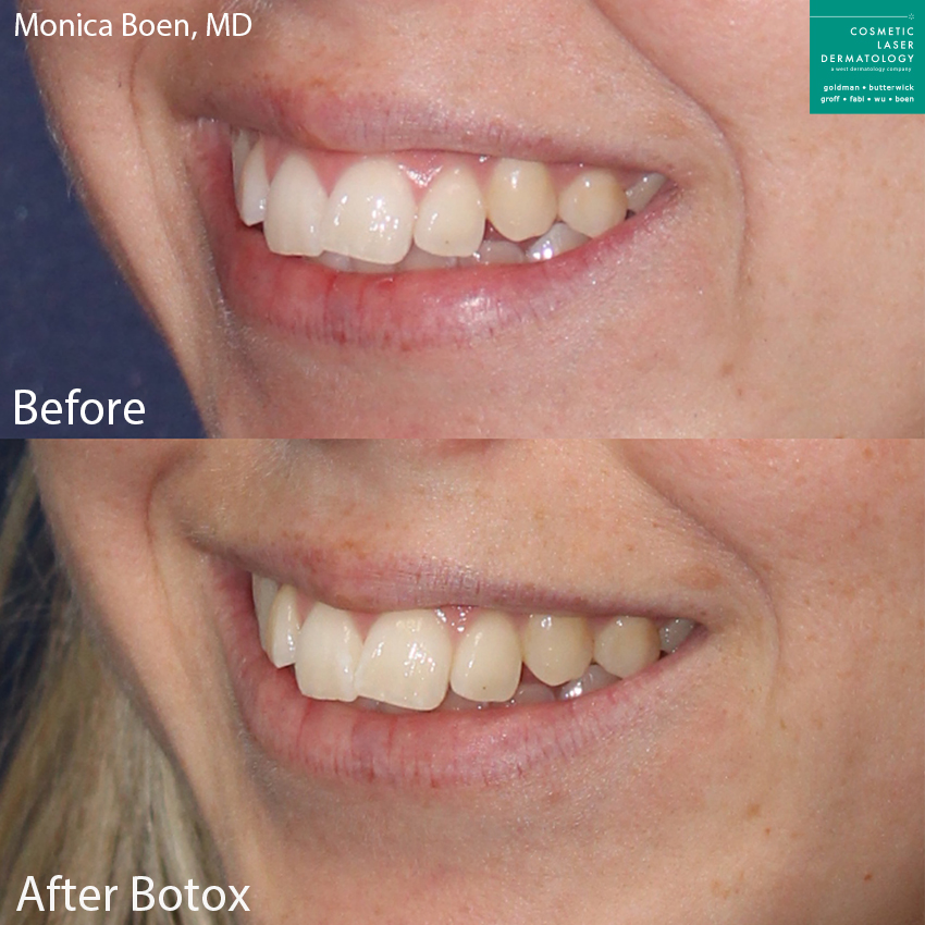 Botox to treat a gummy smile by Dr. Boen. Disclaimer: Results may vary from patient to patient. Results are not guaranteed.