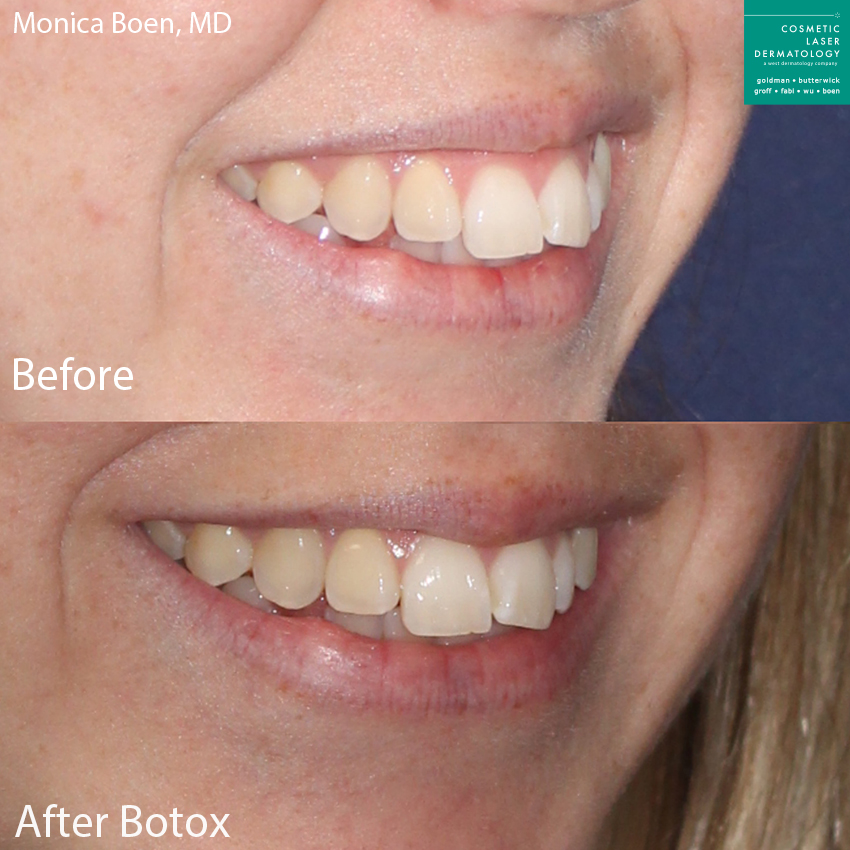 Botox to treat gummy smile by Dr. Boen. Disclaimer: Results may vary from patient to patient. Results are not guaranteed.