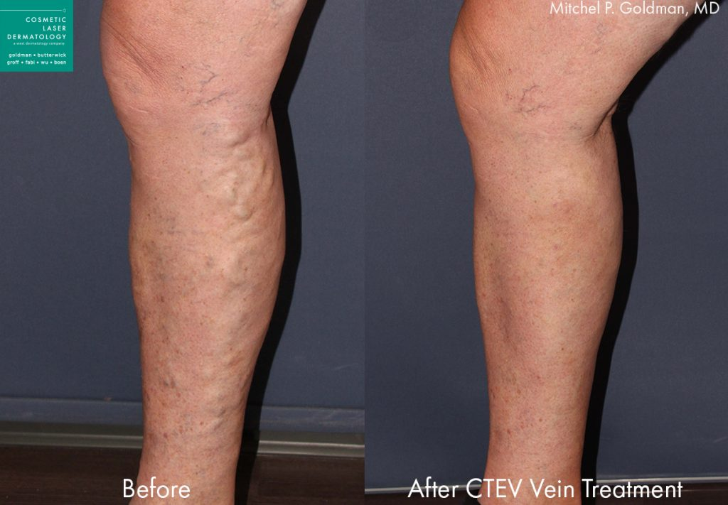 CTEV to remove varicose veins by Dr. Goldman. Disclaimer: Results may vary from patient to patient. Results are not guaranteed.